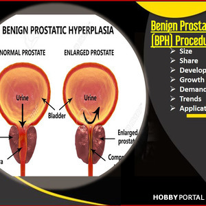 Benign Prostatic Hyperplasia (BPH) Procedures Market Comprehensive Review of its Applications Growth Opportunities and Future Prospects